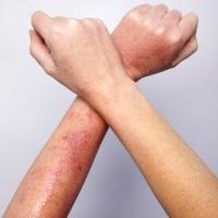 фото сыпь на руках
